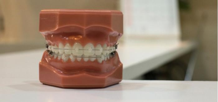 Soñar con Dientes Flojos Dentista
